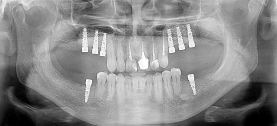 Клинический пример дентальной имплантации. Состояние полости рта ПОСЛЕ имплантации