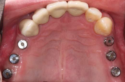 Клинический пример дентальной имплантации. Установка 6 имплантов на верхнюю челюсть